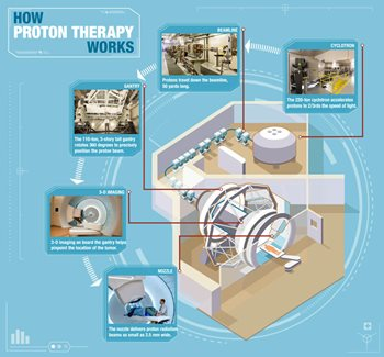 How Proton Therapy Works - Texas Center for Proton Therapy